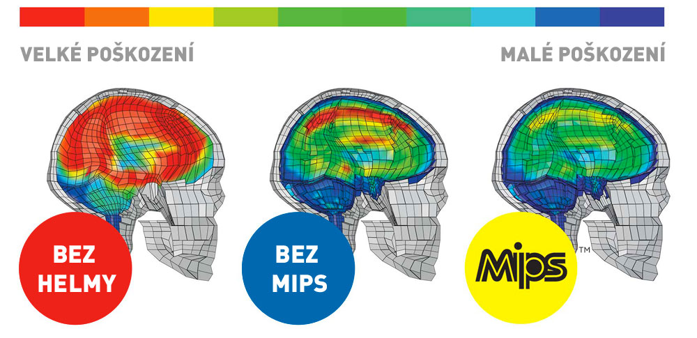 mips-brain-strain-hires.jpg
